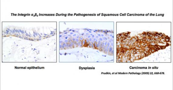 The Integrin αvβ6 Increases During the Pathogenesis of Squamous Cell Carcinoma of the Lung